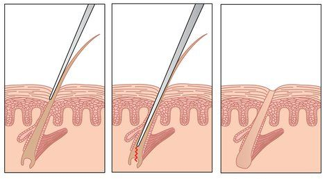 Ingrown Hairs – Causes,Treatmens and Prevention | Magic Advice